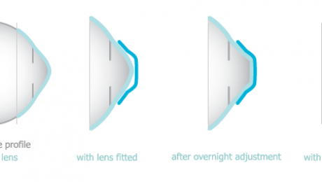 Diagram of eye surface profile