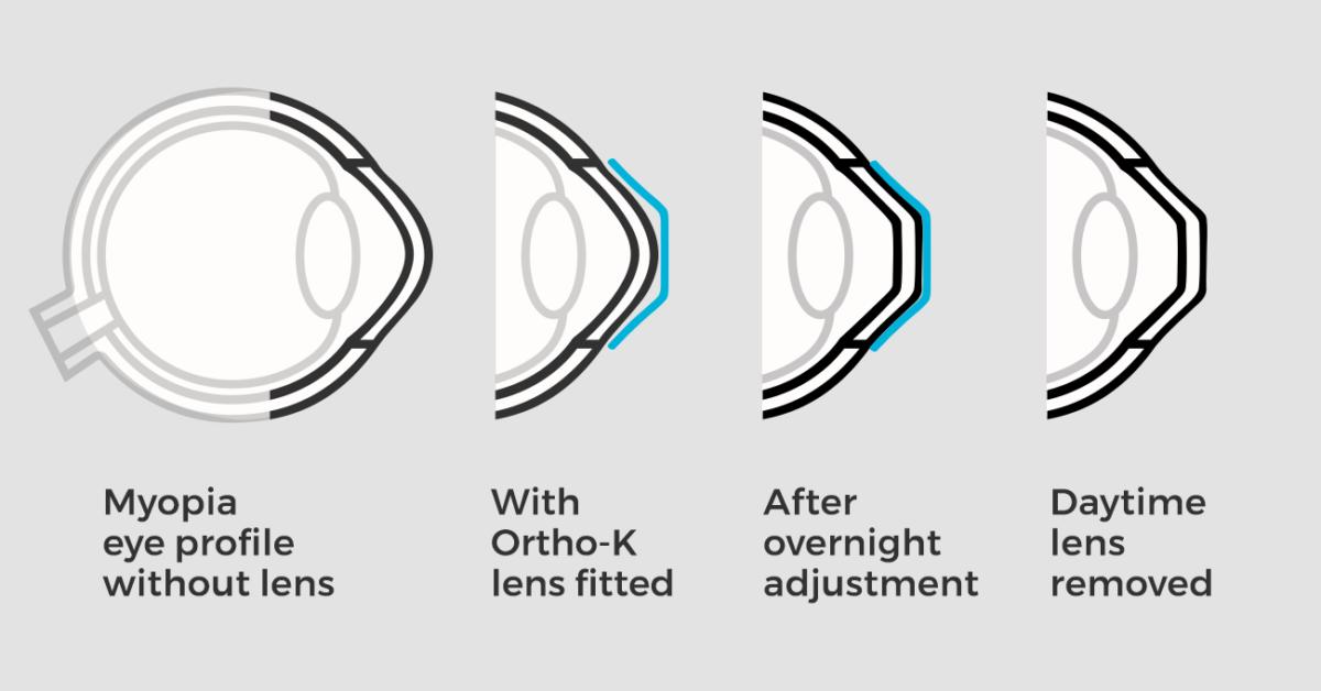 myopia correction with ortho k