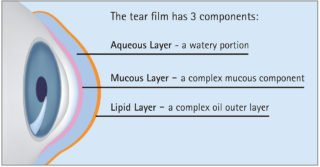 Diagam of dry eye and tear film