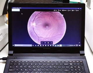 360 eyecare - advanced diagnostics for eye exams - retinal imaging