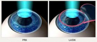 lasik-eye-procedure