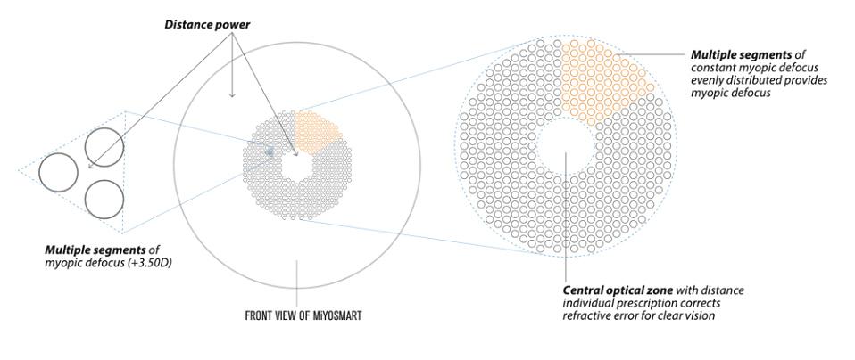 MiyoSmart - Defocus Incorporated Multiple Segments - 360 Eyecare