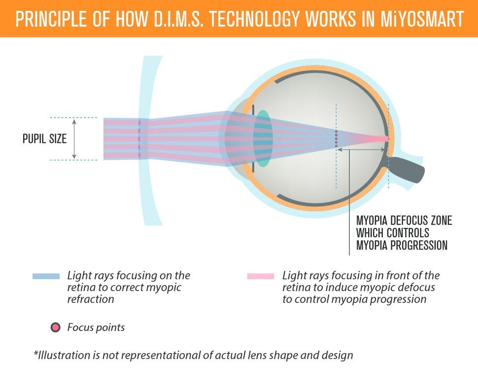 miyosmart - DIMS chart - 360 Eyecare